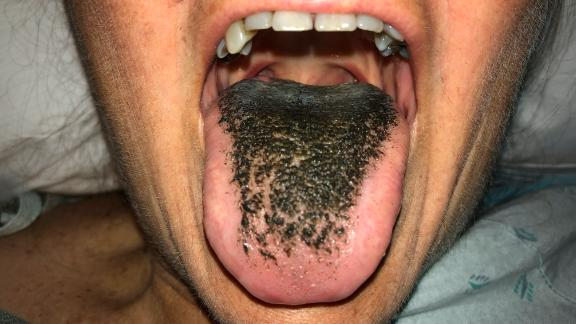"""A woman developed """"black hairy tongue"""" after taking an antibiotic for a wound infection. This image appears in her case report."""