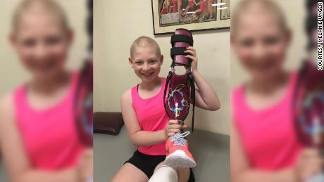 """Delaney Unger shows off her prosthetic """"knankle."""""""