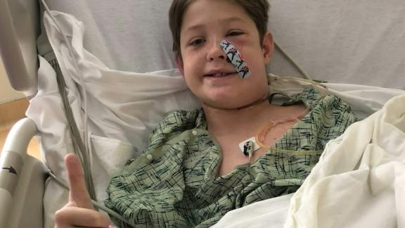 Ten-year-old Xavier survived a penetrating injury to the head by a long metal skewer.