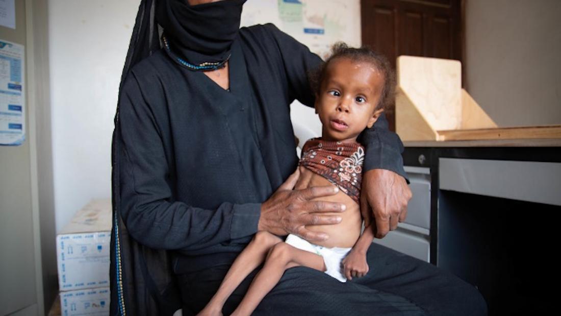 Twelve million face famine in Yemen if bombs don't stop, WFP warns