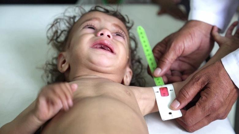 British NGO Save the Children warns that millions of children are at risk of famine in the war in Yemen.