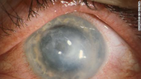 Some patients with Acanthamoeba keratitis require cornea transplants.