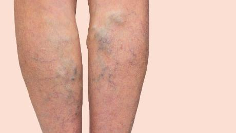 Are you tall? Better watch out for varicose veins