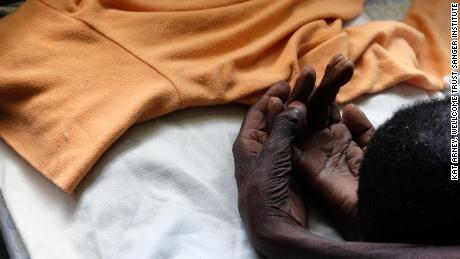 Julia, a  woman dying of oesophageal cancer in Kimbilio hospice in western Kenya.