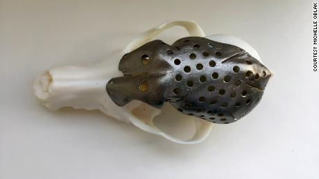 Doctors custom made a skull implant with 3D printing.