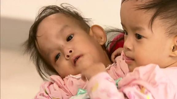 Bhutanese twins Dawa and Nima are joined at the abdomen and have grown up facing each other, unable to move freely.