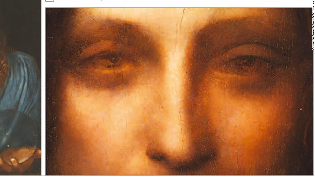 Rare eye condition was behind da Vinci's genius, research claims