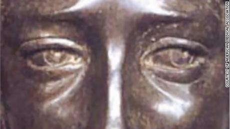 A bronze sculpture of David, reputed to be a depiction of the young Leonardo da Vinci, shows eye misalignment, the study says.