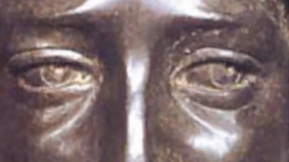 Bronze sculpture of David, reputed to be a depiction of the young Leonardo da Vinci. A, Full Image. B, Exotopic eye alignment delineated by the eyelid aperture, iris, and pupil boundaries.