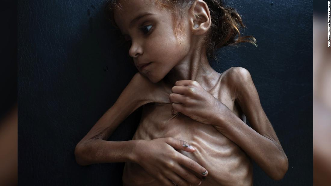 Starving girl who became symbol of Yemen crisis dies