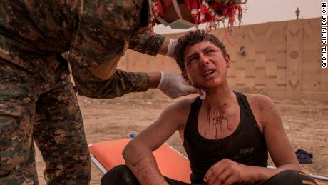 A young SDF soldier receives first aid on the frontline during the operation in Sousa, on October 25.