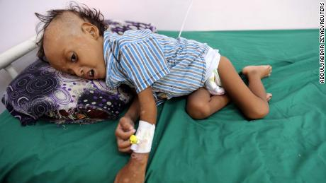 Jibril Mohammed Ali al-Hakami, 2, receiving treatment for malnutrition at the al-Thawra hospital in Hodeidah, Yemen, on Saturday.