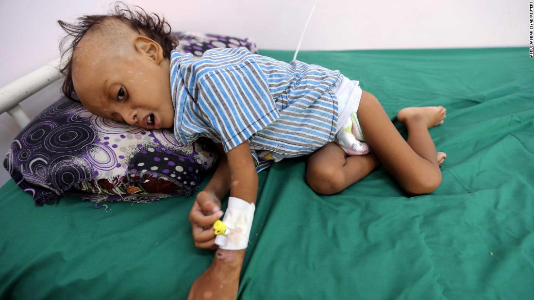 85,000 under 5 may have died of starvation in Yemen