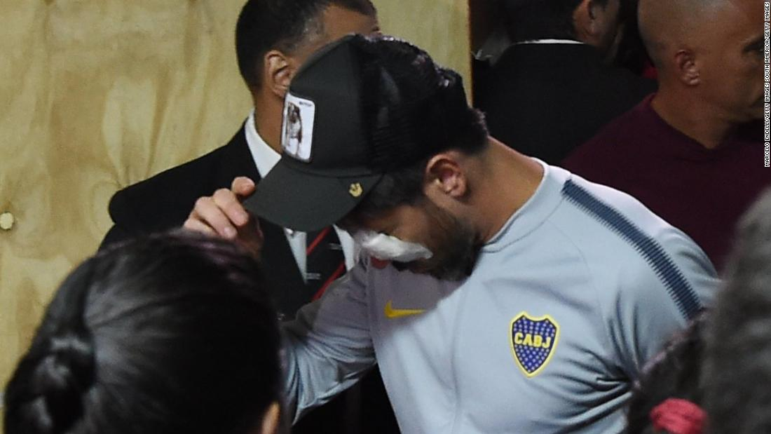 Pablo Perez of Boca Juniors needed medical treatment in a hospital due to an eye injury caused by fans that stoned the team's bus and threw tear gas to the players on Saturday