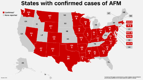 AFM: CDC identifies 31 states with 116 confirmed cases of ... Map Disease on wound map, vegetation map, baldness map, human microbiome map, ciguatera map, ebola in us map, addiction map, infection map, dilation map, prevalence map, actuary map, health literacy map, hiv map, membrane map, pathogen map, climate map, feces map, flowering map, acute renal failure concept map, heredity map,