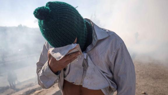 A migrant covers his face after being affected by tear gas.