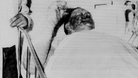 Vernon Dahmer, a civil rights leader who was burned when the Nightriders set fire to his home and shop, died in Hattiesburg on January 10, 1966.