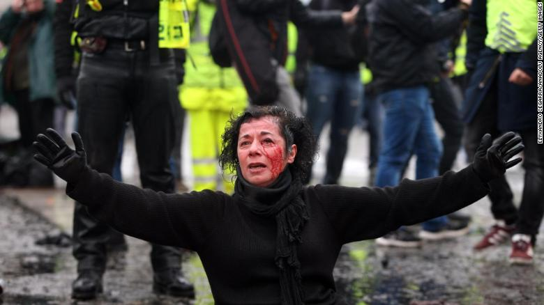 An injured woman sits on the ground as police officers spray yellow vest protesters with tear gas during a protest in Paris.