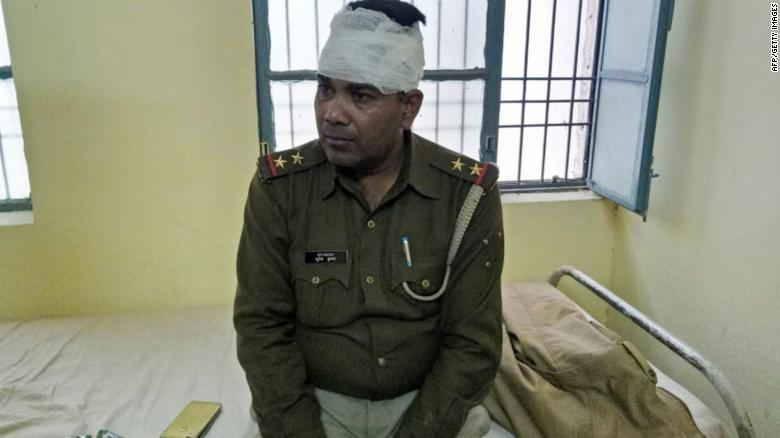 An Indian policeman looks on after receiving treatment for a head injury following reports of mob violence at Chingravati village in Bulandshahr, on December 3, 2018.