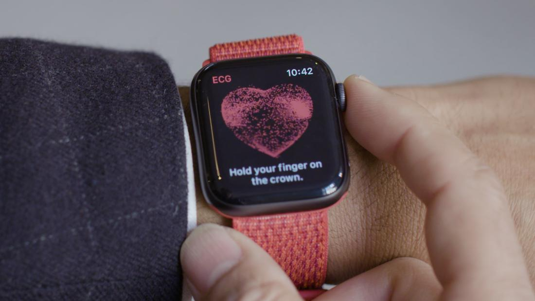 Apple Watches and iPhones could be used to detect a leading cause of strokes