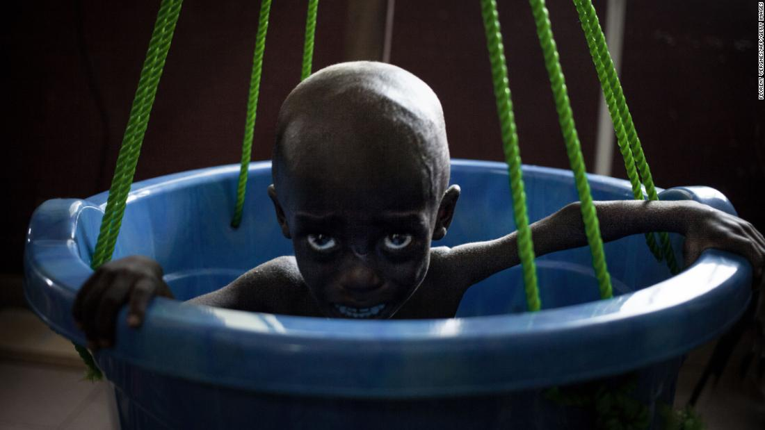 A malnourished girl cries as she is weighed at a pediatric complex in Bangui, the capital of the Central African Republic, on Tuesday, December 4. The nation's infant mortality rate is one of the highest in the world, according to a UNICEF report this year.