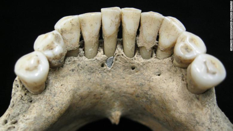 Although it's hard to spot, researchers found flecks of lapis lazuli pigment, called ultramarine, in the dental plaque on the lower jaw of a medieval woman.