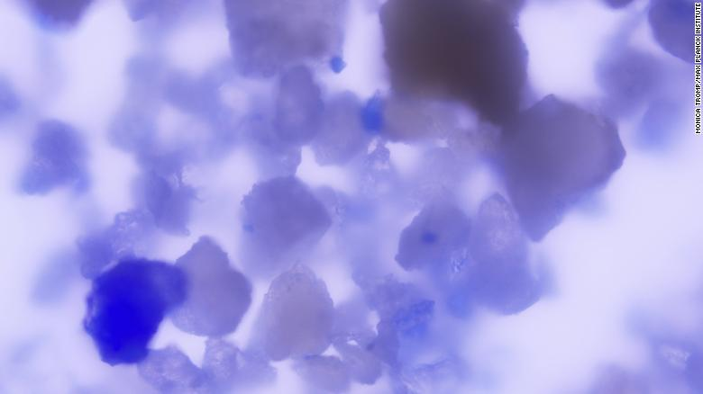 A magnified view of lapis lazuli particles embedded in dental plaque.