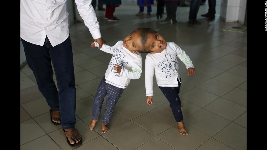Bangladeshi conjoined twin girls Rabeya and Rukaiya walk with their father, Rafiqul Islam, at Dhaka Medical College Hospital in Dhaka on Friday, January 4. The 2-year-old twins are expected to be separated in a series of surgeries.