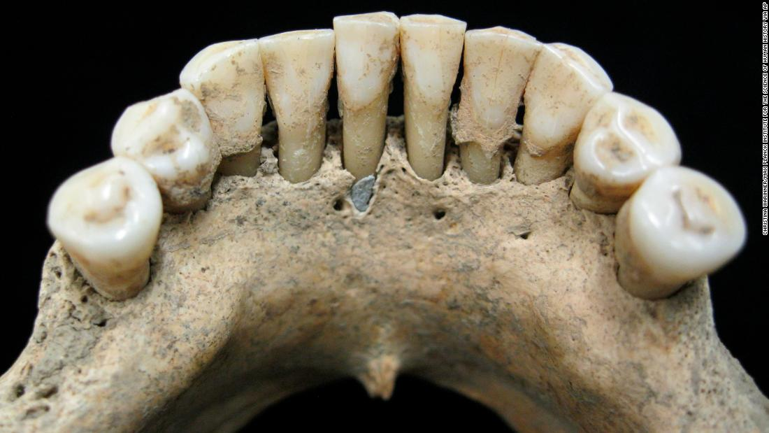 "This undated photo released by the Max Planck Institute for the Science of Human History in Jena, Germany, shows the lower jaw of a medieval woman. Trapped just below her center tooth is an <a href=""https://www.cnn.com/2019/01/09/health/medieval-woman-ultramarine-teeth-study/index.html"" target=""_blank"">expensive pigment called lapis lazuli</a>. The discovery of the rare, expensive blue pigment sheds light on a hidden chapter of history."