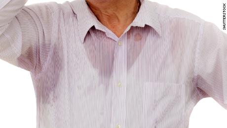 A case reports described a man who struggled with unexplained sweating episodes for years.