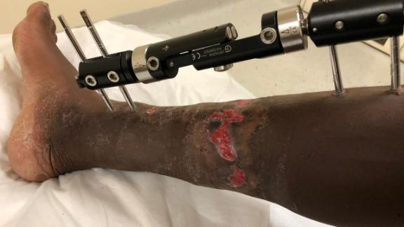 Gwala suffered the horrific chainsaw attack in March 2018.