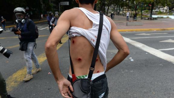 A wounded protester shows his back as riot police clashed with opposition demonstrators in Caracas on January 23.