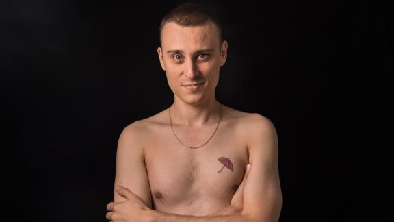 Thierry Shaffauser, 36, displays his red umbrella tattoo, a symbol for sex workers