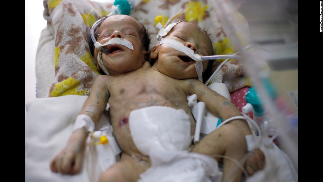 """Conjoined twins Abd al-Khaleq and Abd al-Rahim lie in an incubator at a hospital in Sanaa, Yemen, on Wednesday, February 6. A doctor at the hospital told the Reuters news agency that the boys """"will not be able to survive in Yemen under the social, political and economic circumstances in this country."""""""