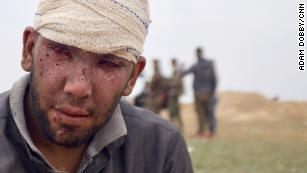 Abdul Rahman was  wounded by an airstrike on his home in Baghouz Al-Fawqani.