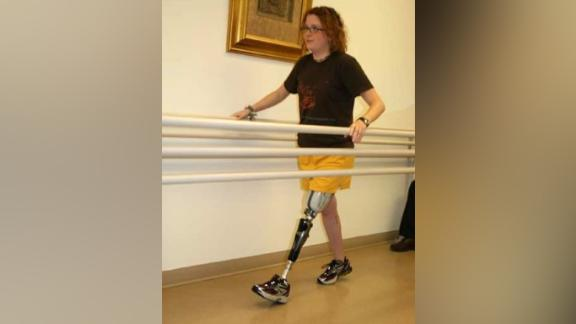 Megan Harmon works on rehabilitation after losing her left leg because of a motorcycle accident.