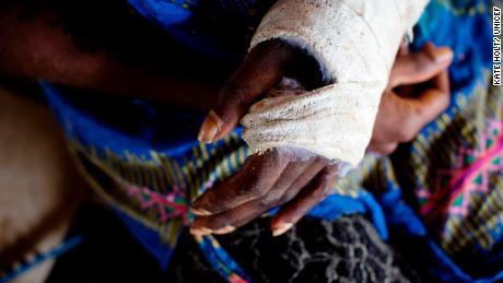 A woman, whose says her husband cut her arm with a large metal knife, holds her bandaged hand at a women's centre in Wewek East Sipek, Papua New Guinea, on March 4, 2019.
