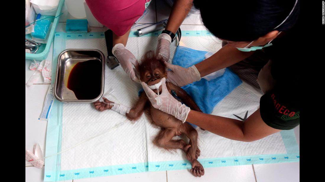 A veterinarian and a volunteer for the Sumatra Orangutan Conservation Program tend to a 3-month-old baby orangutan named Brenda that was evacuated from a village with a broken arm at the SOCP facility in Sibolangit, North Sumatra, Indonesia on Sunday, March 17.
