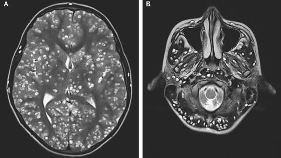 Damage-causing cysts were seen on MRI scans of the patient's cerebral cortex and brain stem.