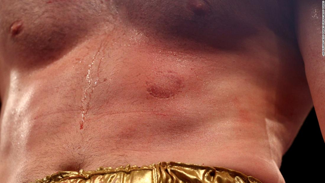 Kash Ali: Boxer given six-month ban for biting David Price