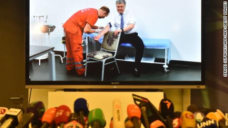 Microphones in front of a screen showing Ukrainian President Petro Poroshenko undergo a blood test live.