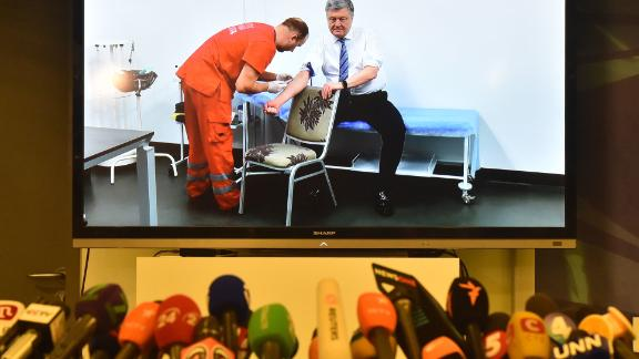 Microphones in front of a screen showing Ukrainian President Petro Poroshenko undergo a blood test live.