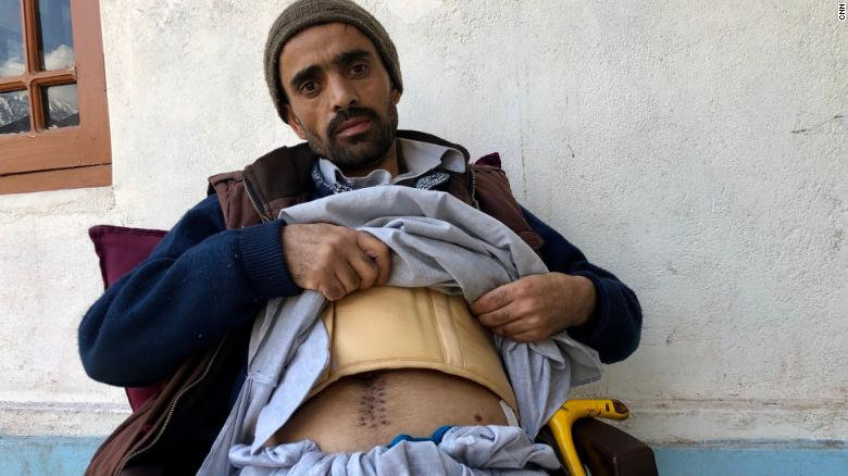 Mohammad Riyad shows the scars he received after shrapnel split open his abdomen.