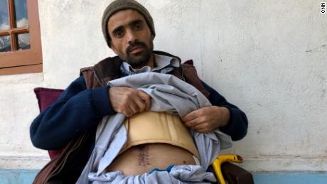 Mohammad Riyad shows the scars he received after his splinter split his stomach.