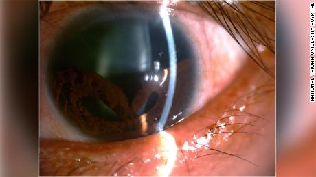 Another view of the patient's iris.