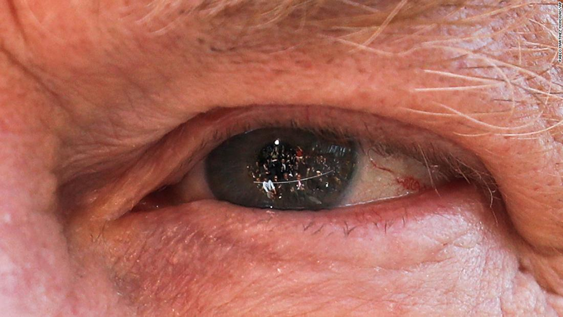 Members of the media are reflected in the eye of US President Donald Trump as he answers questions outside the White House on Wednesday, April 10.