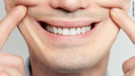 Making fake smile with teeth and fingers close up; Shutterstock ID 1067570882; Job: -