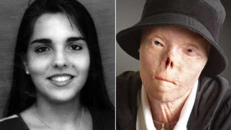 Woman Who Became Face Of Anti Drunk Driving Campaign Dies Cnn Video