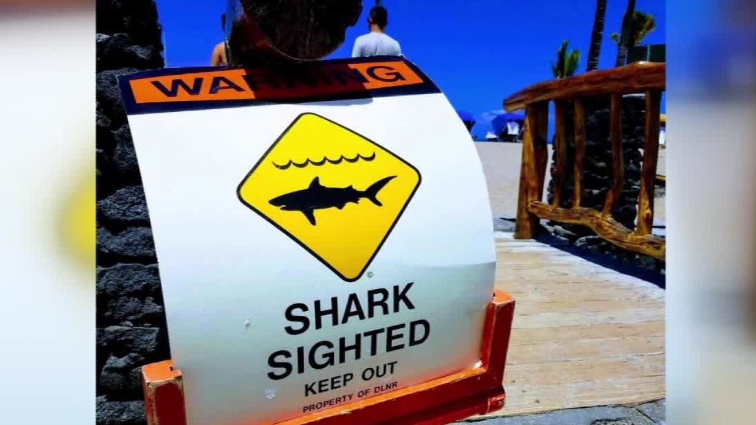 65-year-old Hawaiian tourist attacked by a shark