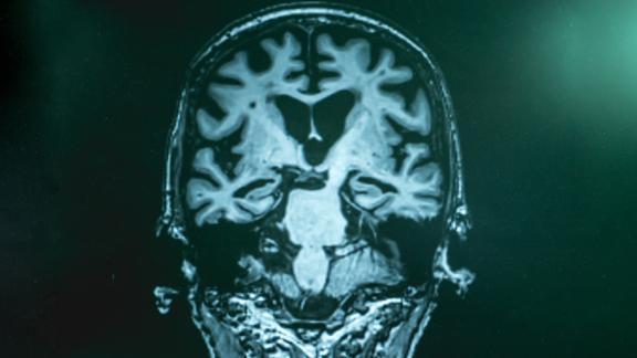 Alzheimer MRI
